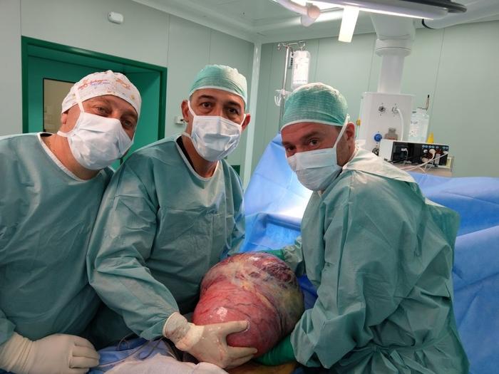 Asportato tumore da 12,5kg a una 37enne in Molise